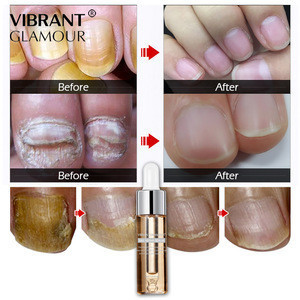 VIBRANT GLAMOUR Essentials Nail & Cuticle Oil