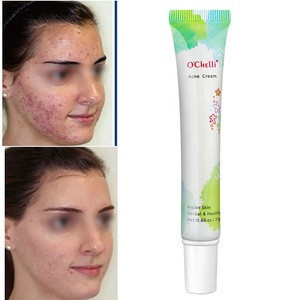 OEM/ODM 25g Ochelli Best Pimples Removal Face  Anti Acne Cream