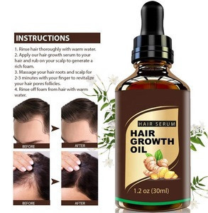 Private Label Anti Loss Popular Natural Hair Growth Oil for Women and Men