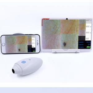 Porable magic mirror wireless wifi skin & scalp Analyzer
